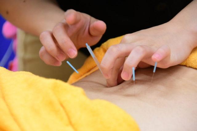 鍼灸治療の風景