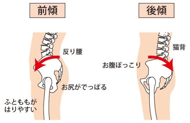 骨盤が歪む代表例